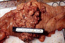 carcinoma colon rettale