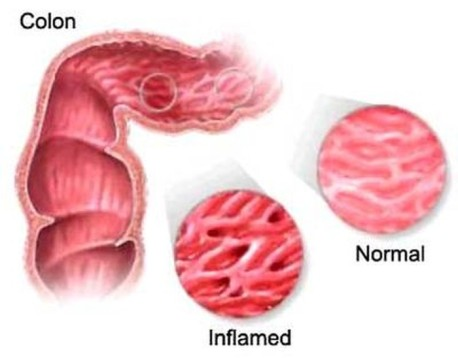 colon infiammato colite